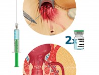 A Step-By-Step Surgical Protocol for the Treatment of Perianal F